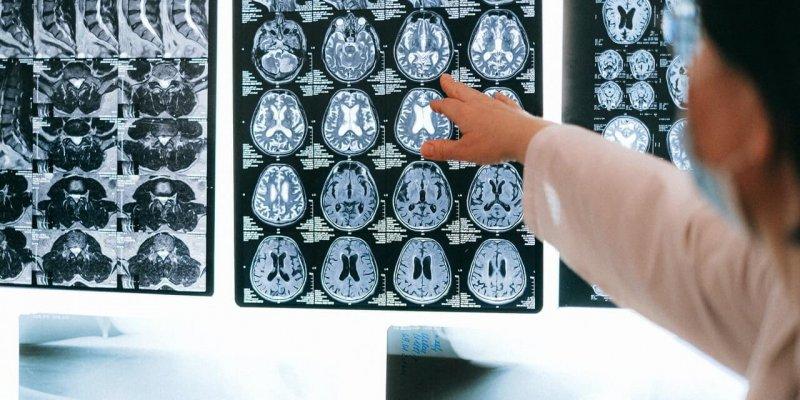 Astra kliinik neuroloog sclerosis multiplex